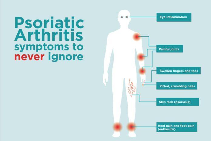 what is psoriatic arthritis