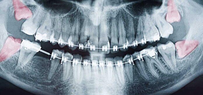 When Do Wisdom Teeth Come In